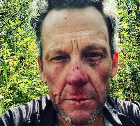Бившият шампион в колоезденето Ланс Армстронг падна жестоко и удари
