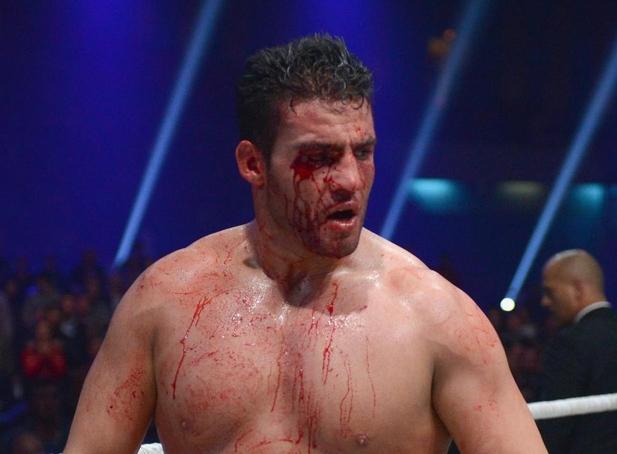 Боксьорът в тежка категория Мануел Чар бе уличен в употреба