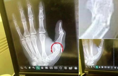 Нападателят на Ливърпул Садио Мане претърпя успешна операция на палеца