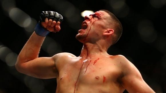 Една от големите звезди в ММА Нейт Диас (20-11 MMA,