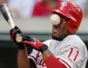Десетте най-нелепи контузии в историята на бейзбола