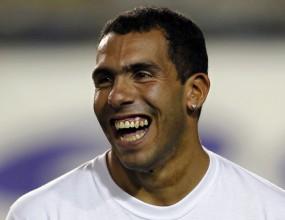 Манчини: Тевес ще е готов за игра след две седмици