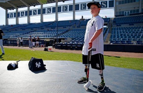 10-годишно момче с увредени крайници подписа с Янкис (видео)