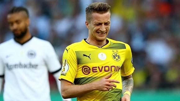 От Дортмунд потвърдиха: Ройс ще отсъства няколко месеца