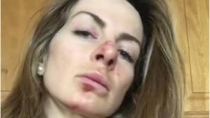 Сани Жекова с извадено рамо и ожулено лице (видео)