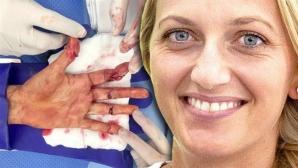 Полицията в Чехия арестува заподозрян в нападението над Петра Квитова