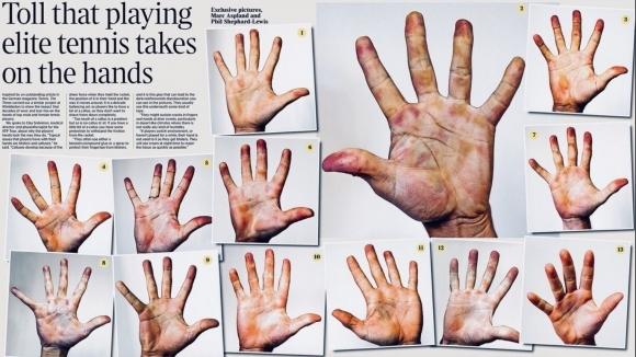 Вижте как изглеждат ръцете на тенис звездите
