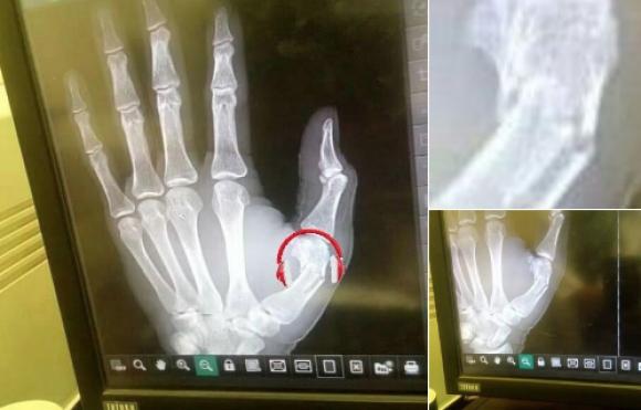 Мина операцията на Садио Мане