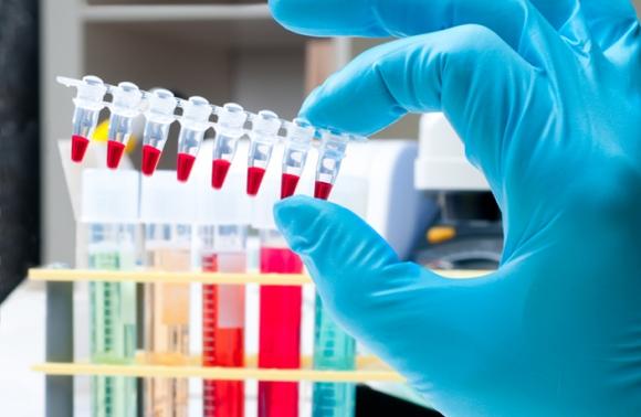 Експертите от УАДА не успяха да завършат работата си по изтеглянето на данни от московската допингова лаборатория