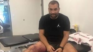 Багата в института на UFC заради десния крак, иска да се възстанови бързо