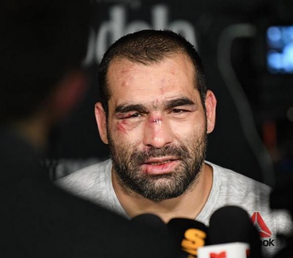 Благой Иванов ще почива два месеца след победата над Тай Туиваса