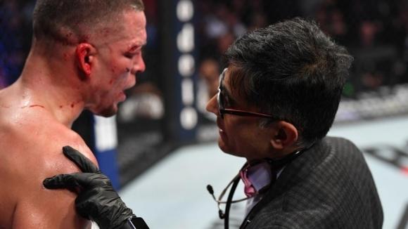 Конър Макгрегър разкритикува щаба на Нейт Диаз в UFC 244