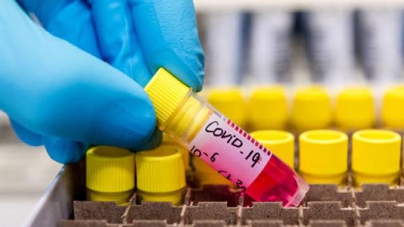 Битката на спорта с коронавируса