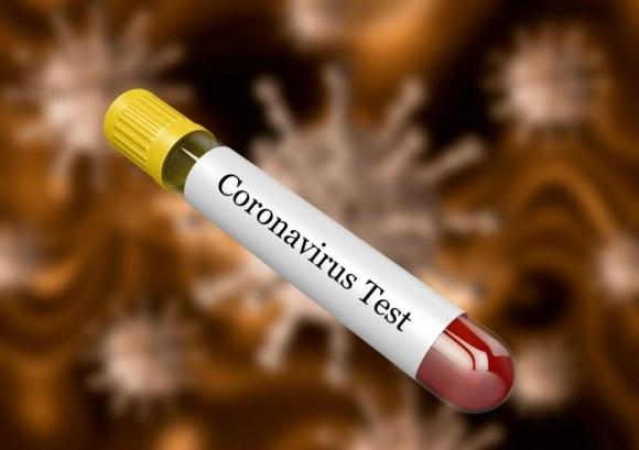 Фейенорд обяви за втори заразен с коронавирус...